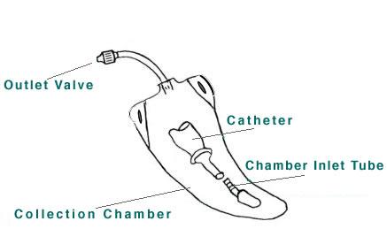 Simplicity bag diagram